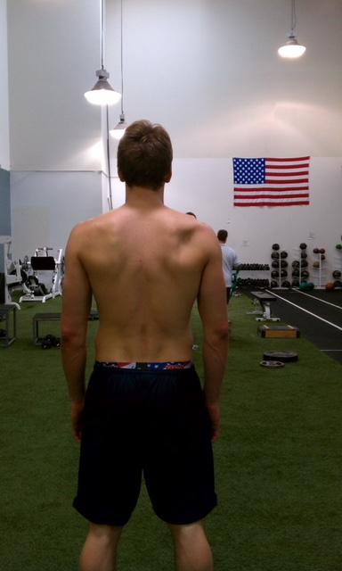 Volleyball Shoulder: picture of high level volleyball player with muscle loss around his right shoulder blade