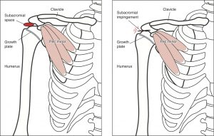 Kids shoulder pain- picture of the shoulder blade where tight muscles can pull and reduce space for other muscles to work