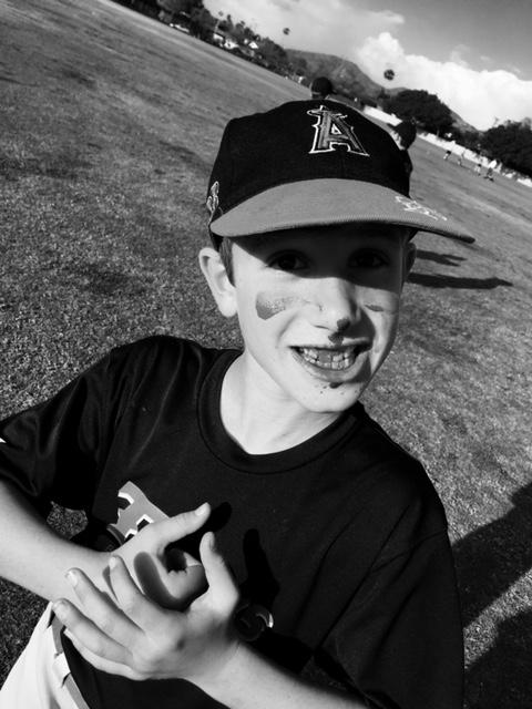 Baseball Safety: Picture of a baseball players with a bloody nose after being hit by a ground ball
