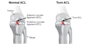 ACL Injuries: picture of an intact and torn ACL