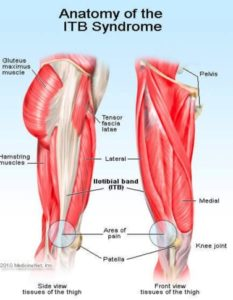 Knee Pain- picture of the IT band